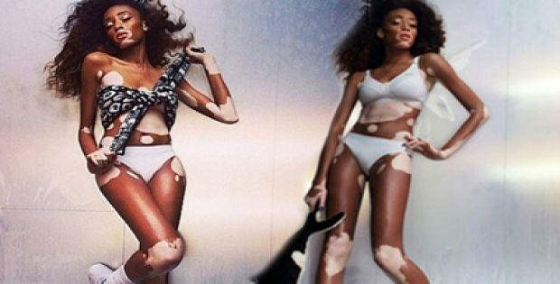 Chantelle Young Brown Skin | Chantelle Brown Young hastalığını avantaja çevirdi Foto Galeri 18 ...
