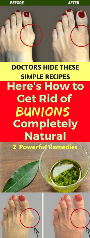 how to get rid of bunions at home