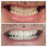 AP-24® Whitening Fluoride Toothpaste, teeth whitening, teeth bleaching, whiter teeth, texas teeth, dentist whitening, toothpaste, fluoride toothpaste
