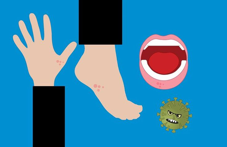 Free image on pixabay disease hand foot mouth hfmd