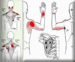 How To Treat And Cure Stiff Neck Or Shoulder To Ease The Pain