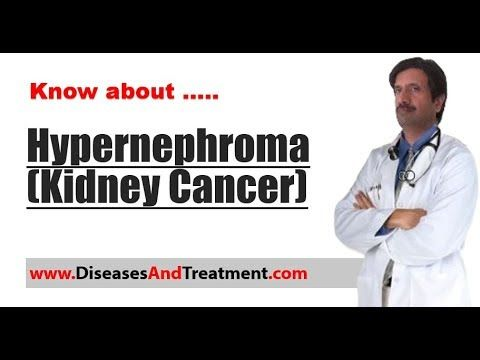 Hypernephroma (Kidney Cancer) : Causes, Diagnosis, Symptoms, Treatment - WATCH VIDEO HERE -> http://bestcancer.solutions/hypernephroma-kidney-cancer-causes-diagnosis-symptoms-treatment    *** renal cell cancer causes ***   Hypernephroma ,Kidney Cancer Video credits to the YouTube channel owner