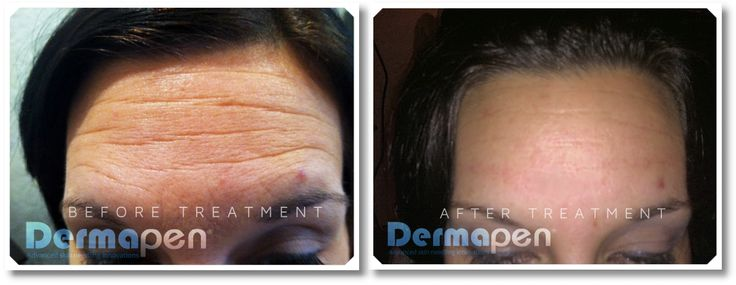 dermapen before and after photos - Google Search