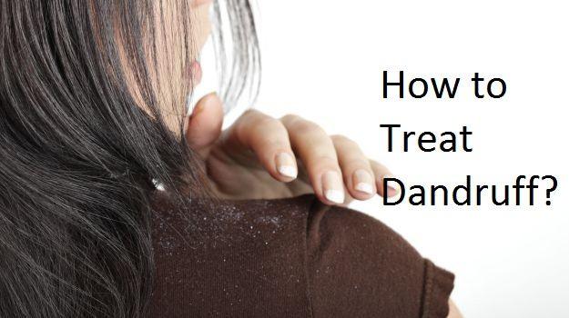 How to treat dandruff? Get rid of dandruff fast and naturally? Avoid dandruff. Prevent dandruff on scalp. Remedies for dandruff treatment. Cure dandruff.