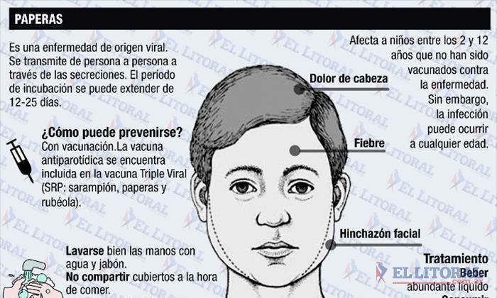 """Ante un """"brote"""" de Paperas, estudian las causas y piden controlar el calendario de vacunación   Diario El Litoral   Corrientes"""