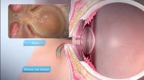 In this PPT we show you different types of symptoms, cause and treatment of dry eyes. Offers surgical and non surgical dry eye treatments that will help your relief your Dry Eye symptoms and improve your eye sight.