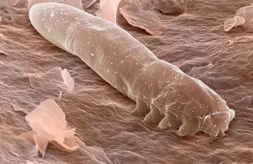 Durante el día, los ácaros Demodex folliculorum viven en nuestros folículos. Pero en la noche, salen a tener sexo en nuestra cara y cuero cabelludo, en las aperturas foliculares.