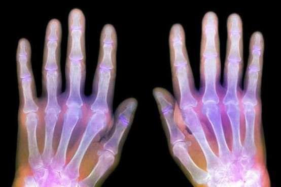 remedios caseros para la artritis en las manos1