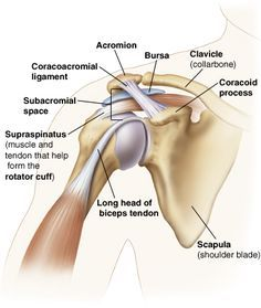 Outline of shoulder showing parts of shoulder joint: acromion, coracoid process, coracoacromial ligament, subacromial space with bursa inside, clavicle (collarbone), scapula (shoulder blade), long head of biceps tendon, and supraspinatus (muscle and tendon that help form rotator cuff).