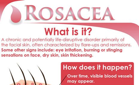 Rosacea occurs when blood vessels appear just under the surface of the skin and begin to get inflamed. They develop into pimples and other skin irritations, including lesions, spider veins, and dry, flaky skin.