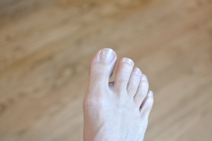 Whether you have thick toenails because of a skin condition such as eczema or psoriasis, fungus or even injury, simple alternatives to prescription medications can treat this condition. Save money and avoid the side effects that can result from costly prescription medications with readily available household products. Determine the cause of your thick toenails before …