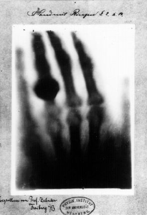 The first X-ray from 1895 by Wilhelm Röntgen of the hand of his wife Anna (image via National Aeronautics and Space Administration)
