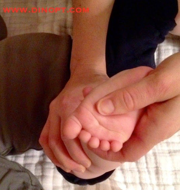 Positional Clubfoot - Dinosaur Physical Therapy