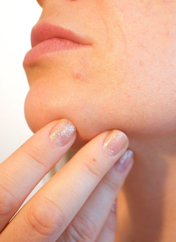 Como acabar com cravos no queixo? Dicas perfeitas!  #cravos #acne #espinhas #pontosnegros #pele #beleza #saúde