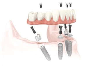 All-on-4 Dental Implants #dental #for #all #of #us #com http://dental.remmont.com/all-on-4-dental-implants-dental-for-all-of-us-com-2/  #dental for all of us com # All-on-4 Dental Implants All-on-4 TM Procedure With the advances in implant dentistry now available from The Implant Center at Dental Associates, you can soon be eating what you want, when you want and where you want. Your facial muscle tone will be restored. You'll put 20 years of […]