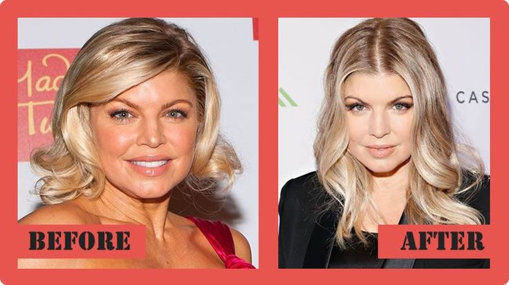 Fergie Plastic Surgery Before And After Fergie Plastic Surgery #FergiePlasticSurgery #Fergie #celebritypost