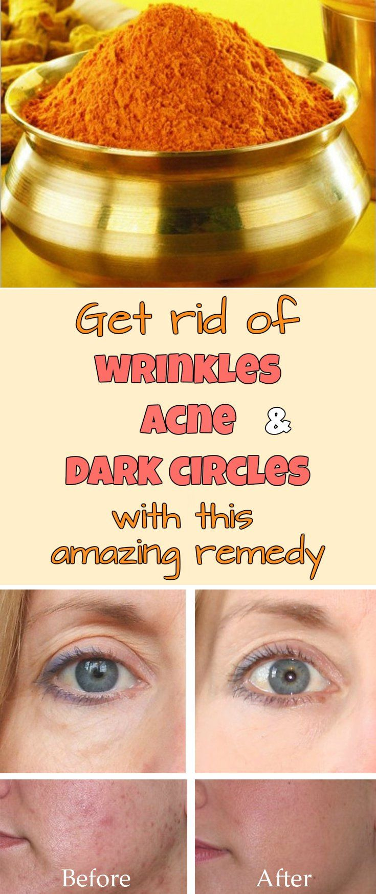 Get rid of wrinkles, acne and dark circles with this amazing remedy - Beauty-Total.com