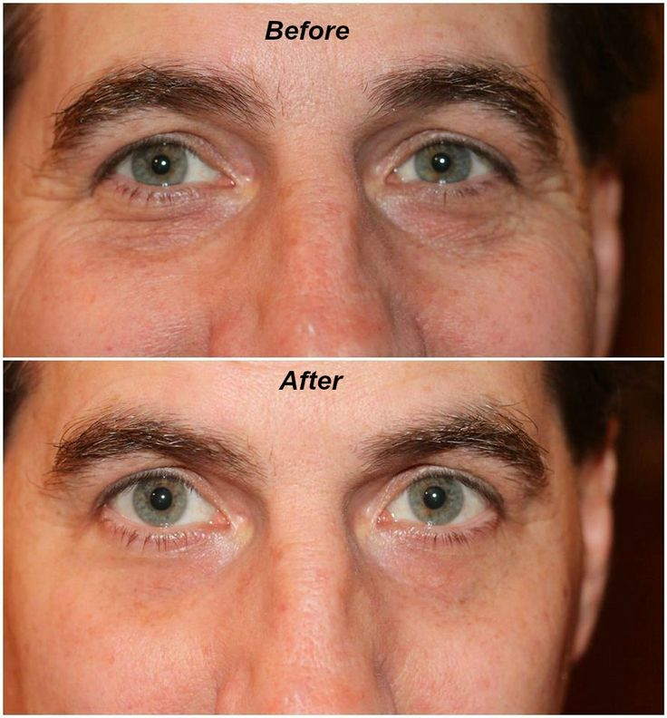 Instantly Ageless is FLYING off the shelves at Jeunesse!! With Instant Results like this on both men and women, you can see why! Contact me to order yours or to get more info on the amazing opportunity!!!!  Contact me if you are amazed with the results! Grace Kearney.....709-873-2262......www.gracekearney.jeunesseglobal.com