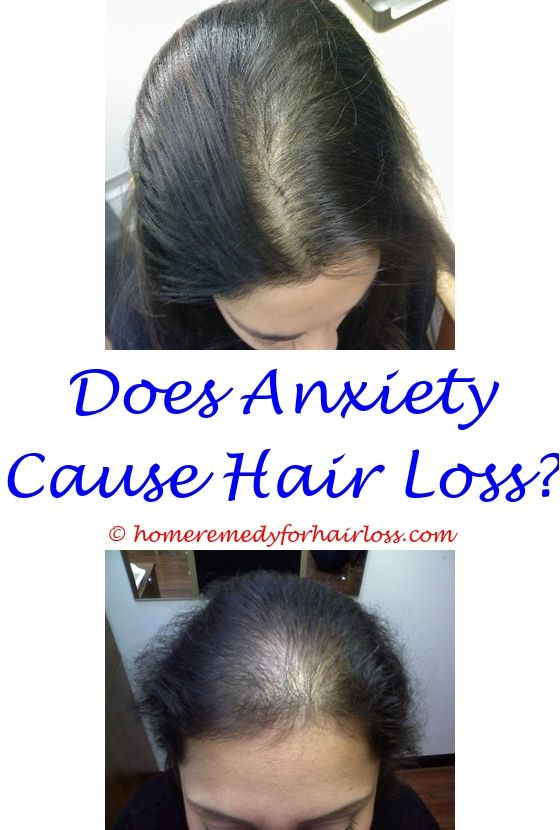 14 best Hair Loss Medication images on Pinterest