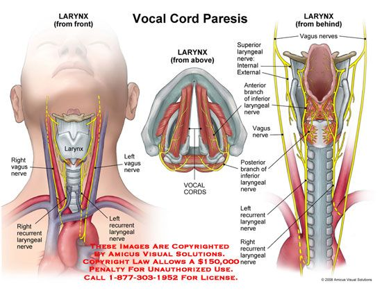 Vocal Cord Paresis