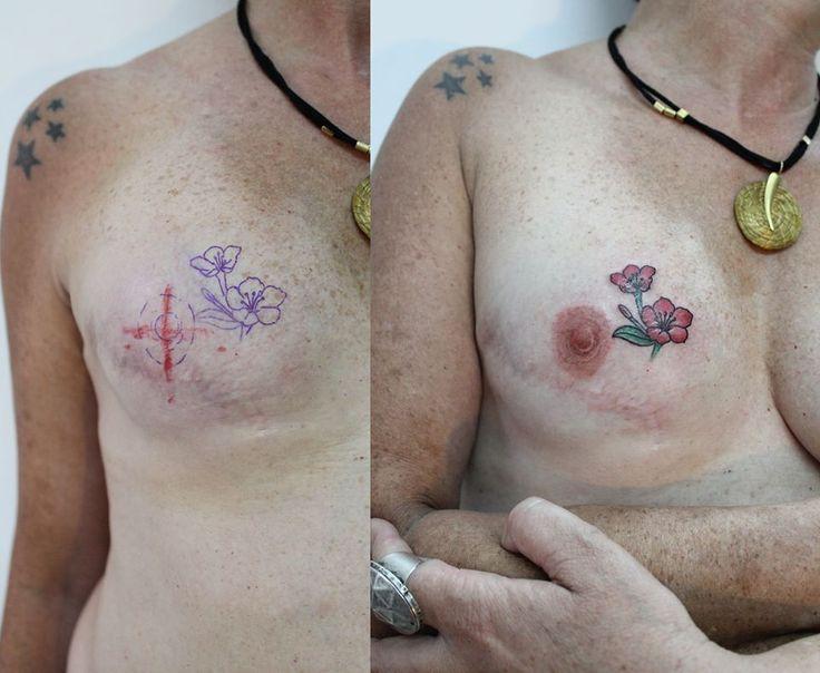 Tattoo que fiz para reconstruir a auréola e mamilo com efeito realista.