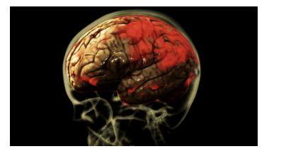 Worms Eat Yor Brain