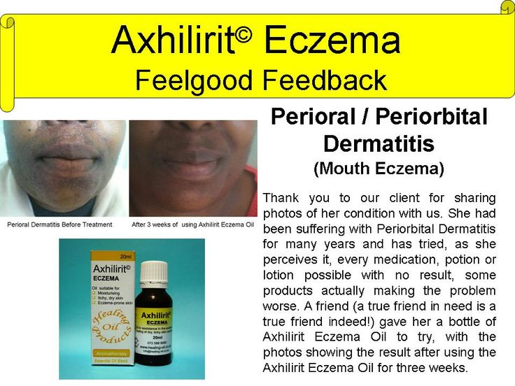 Axhilirit Eczema Oil used for Perioral Dermatitis (Mouth Eczema). Feedback from client. For more info visit www.healing-oil.co.za