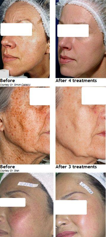IPL Skin Rejuvenation - Before-&-After  http://pampermenow.co.za/ipl-skin-rejuvenation/