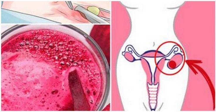 Vždy, když mi gynekolog zjistí cystu či fibrom, piju tento džus. Problémy zmizí za 4 dny!