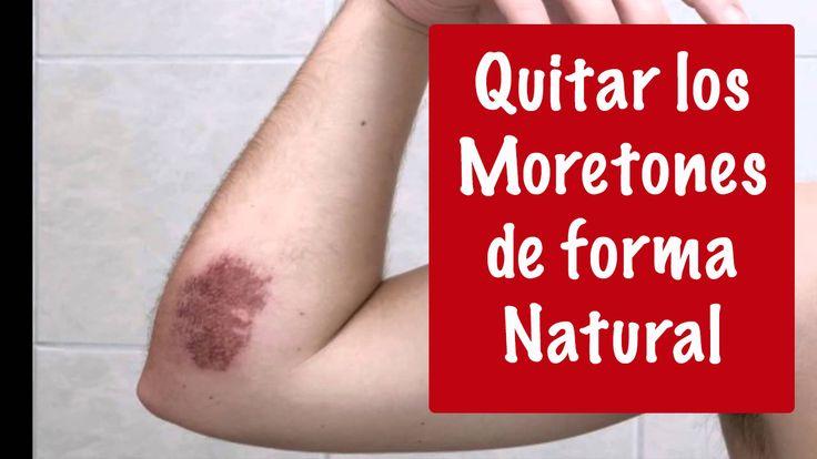 COMO QUITAR MORETONES EN LA PIEL - Como quitar los morados de la piel CLICK AQUÍ PARA VER EL VIDEO >>>  http://youtu.be/2mVMtvPzT1o