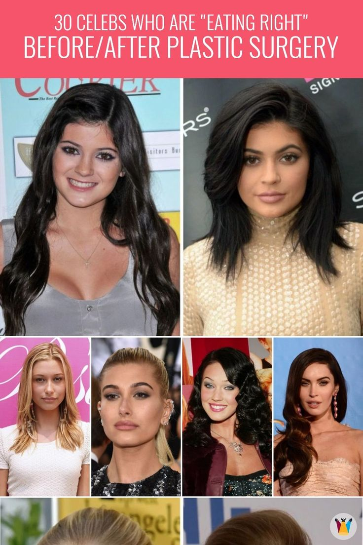 a list of 30 photos showing stunning transformations of famous celebrities after plastic surgeries. From Megan Fox to Ariana Grande to Kortney Kardashian – this list is full of surprises folks