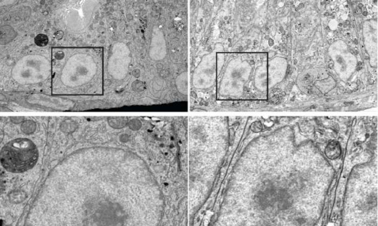 Intestinal cells 'remodel' in response to a fatty meal  #biology #Carnegie #CarnegieInstitutionforScience #Cell #cellularproducts #Chemistry #cholesterol #Digestivesystem #Enterocyte #ErinZeituni #Fat #fattyfood #fattyfoodconsumption #food #Health #Health_Medical_Pharma #metabolism #nutrition #PDF #pharmaceuticals #steroids #Sterols #StevenFarber Check more at https://scifeeds.com/news/intestinal-cells-remodel-in-response-to-a-fatty-meal/