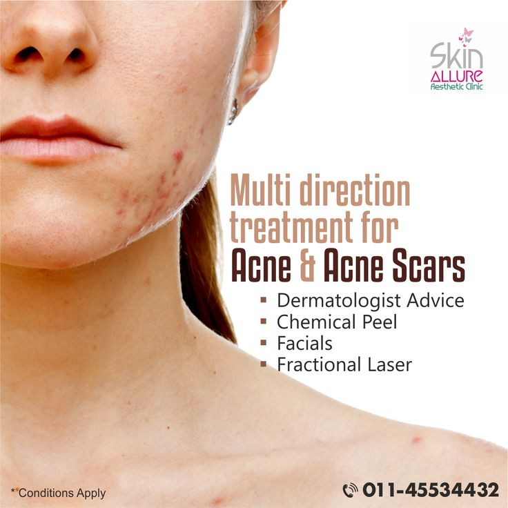 Get rid of light & in-depth acne scars by our most advanced technology. The wide range of acne scar treatment options including advanced facials, chemical peels, fractional laser treatment along with best dermatologist advice.  To know more contact us for a free consultation @ 01145534432, 8800883548 or at http://skinallureclinic.com/. – Team Skin Allure  #acnescarring #skin #skincare #skintreatments #dermatology #chemicalpeels #facials #skinallure #dermatologist #acne #beauty…