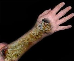 Antibiotic-Resistant Bacteria Infecting Burn Injuries can be Destroyed by Pulsed Electrical Fields