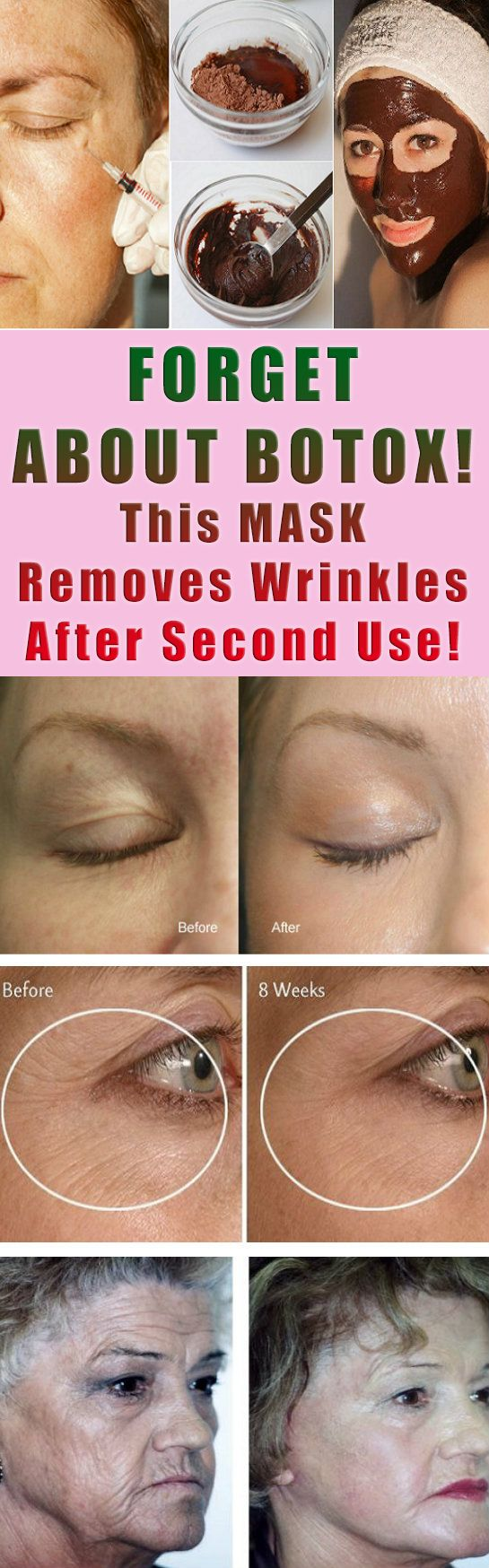 FORGET ABOUT BOTOX  This MASK Removes Wrinkles After Second Use As a result of aging wrinkles appear. They can also appear because of an unhealthy skin and because of them we look older than we are. Wrinkles are especially noticeable around the eye mouth a