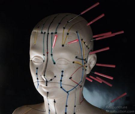 Migraine Acupuncture Points 1