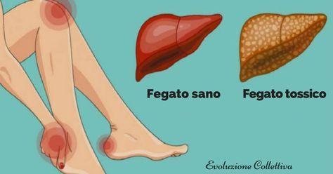 Fegato: 16 sintomi che indicano sovraccarico di tossine. Come depurarlo e disintossicarlo.