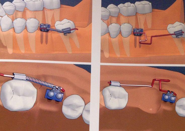 # 03 - Pequenos movimentos dentários utilizado Mini-implante: Verticalização, Mesialização e/ou Distalização. http://www.cetrobh.com/2013/10/03-pequenos-movimentos-dentarios.html