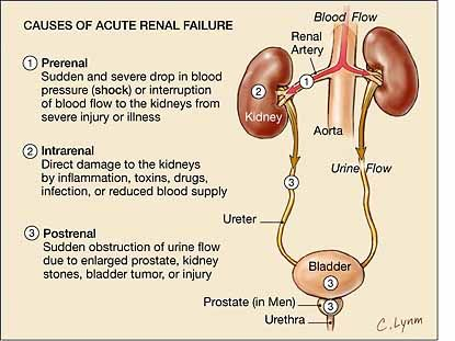 ARF:  PRERENAL has high BUN/creat ratio but low FENa and low FE urea (2% and FE urea >35%.