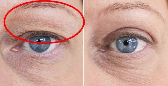 Ha megereszkedett a szemhéjad, ezzel a házi praktikával segíthetsz!