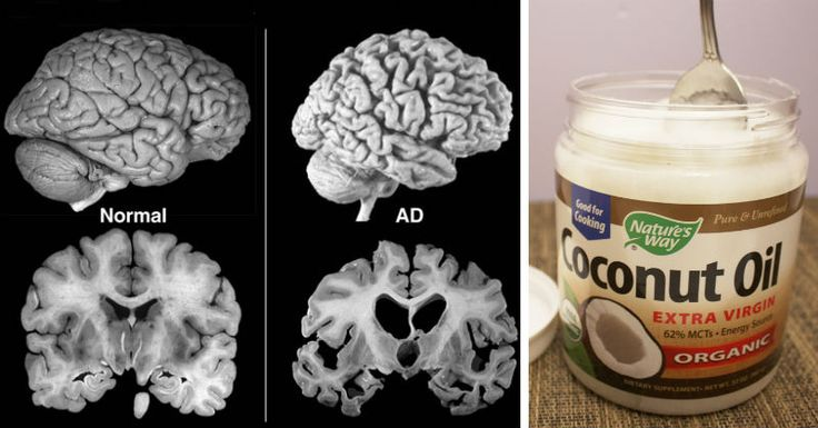 In related news, Florida researchers are also looking into whether coconut oil might be of benefit against Alzheimer's. Three years ago, I published Dr. Mary Newport's theory that ketone bodies, an alternative fuel for your brain that your body makes when digesting coconut oil, might offer profound benefits in the fight against Alzheimer's disease.