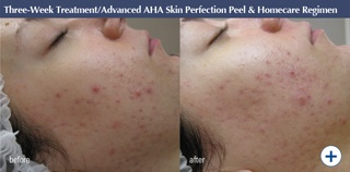 Treatment: Advanced AHA Skin Perfection Peel. Home Skincare Products: Facial Cleanser, Facial Gel, Barrier Repair Complex, Daily Defense. Skin condition before: Large open pores, acne & red, inflamed skin. Shiny & oily imbalanced skin. Blocked pores. Skin condition after: Smoother, less angry & inflammation on acne improvement. Hydrated, a healthy shine from the complexion improvements – not the oil secretion. Clear areas around chin, hairline & cheeks. Plump, illuminated complexion.