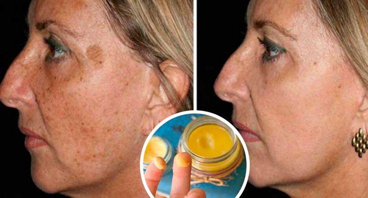 Las manchas de pigmento de las cremas de edad para