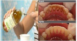 Dites au revoir à la mauvaise haleine, à la plaque dentaire et au tartre et détruisez les mauvaises bactéries de votre bouche avec cet ingrédient !