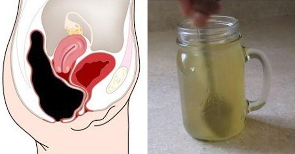 Tento jednoduchý trik odstráni horu toxínov z vášho hrubého čreva