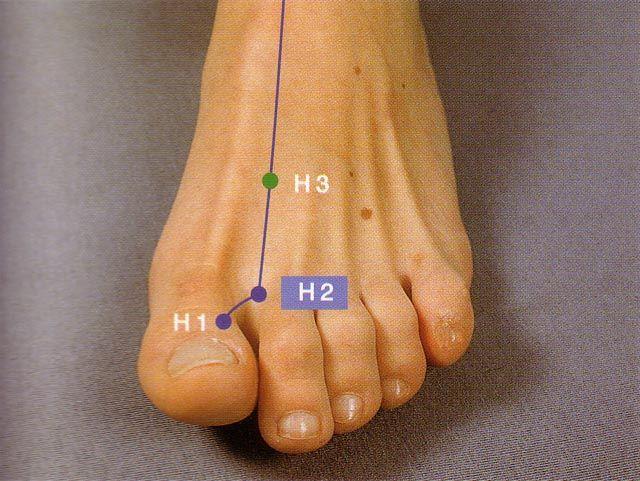 El H3 (Taichong) es un punto de acupuntura de magestuosa eficacia para afecciones de hígado y drenar o desintoxicar el órgano más importante que tiene el cuerpo humano, para encargarse de un estado de salud sin toxinas. La otra maravilla de este punto de acupuntura, es que permite el sanar frustraciones, indecisiones, rabia acumulada o mal genio y dificultad para aceptar la vida como esta se presenta.