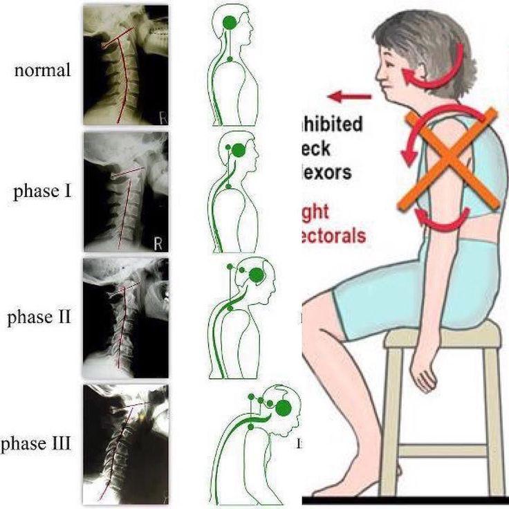 #デスクワーク における#姿勢 と#頸部痛 と#頭痛 の関係 Relationship between #posture neck pain and #headache  カイロプラクティックに来る患者さんで多いいケースは腰痛肩こりが一番ですが頸部痛や頭痛で来院される方も凄く多いいです  頭痛の種類にも色々あり#片頭痛 #筋緊張性頭痛 椎間関節由来による頭痛三叉神経頭痛頭部外傷性による頭痛群発頭痛ストレス由来による頭痛などあります  カイロプラクティックによって効果が期待出来るのは頭痛の中の圧倒的に多いいデスクワークの不良姿勢やスマホやゲームなどによってなりやすい#クレーンネック とか#ストレートネック とも言われる首の形や#猫背 など特徴とする筋緊張性頭痛や椎間関節由来の頭痛です  #pain  #肩凝り #腰痛 #マッサージ #筋肉 #メンテナンス #コンディショニング #筋骨格系 #痛み #筋トレ #ボディビルディング #ボディメイク #肉体改造 #筋肉 #muscle #運動 #新橋 #大門 #浜松町