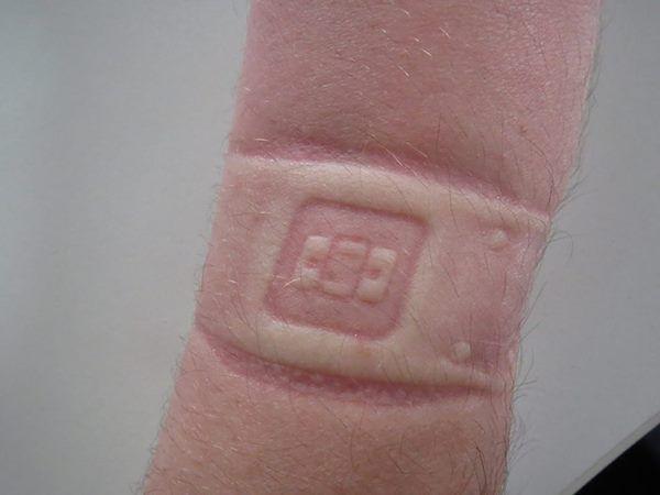 La mauvaise façon de porter une montre cardio optique trop serrée