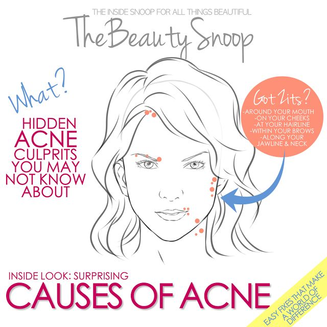 I am violating pretty much ALL of these no-no's... ugh. Great info about acne that every girl should know
