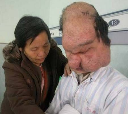 15 Weird Diseases LION FACE SYNDROME
